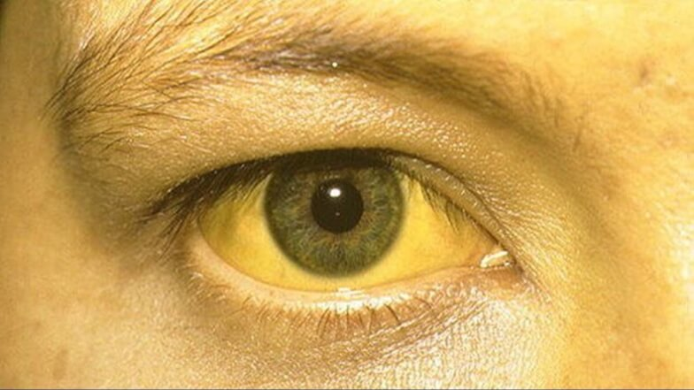желтизна лица при онкологии